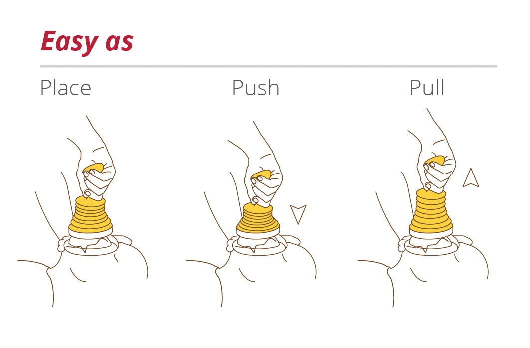 LifeVac Choking Aid Procedure Graphic