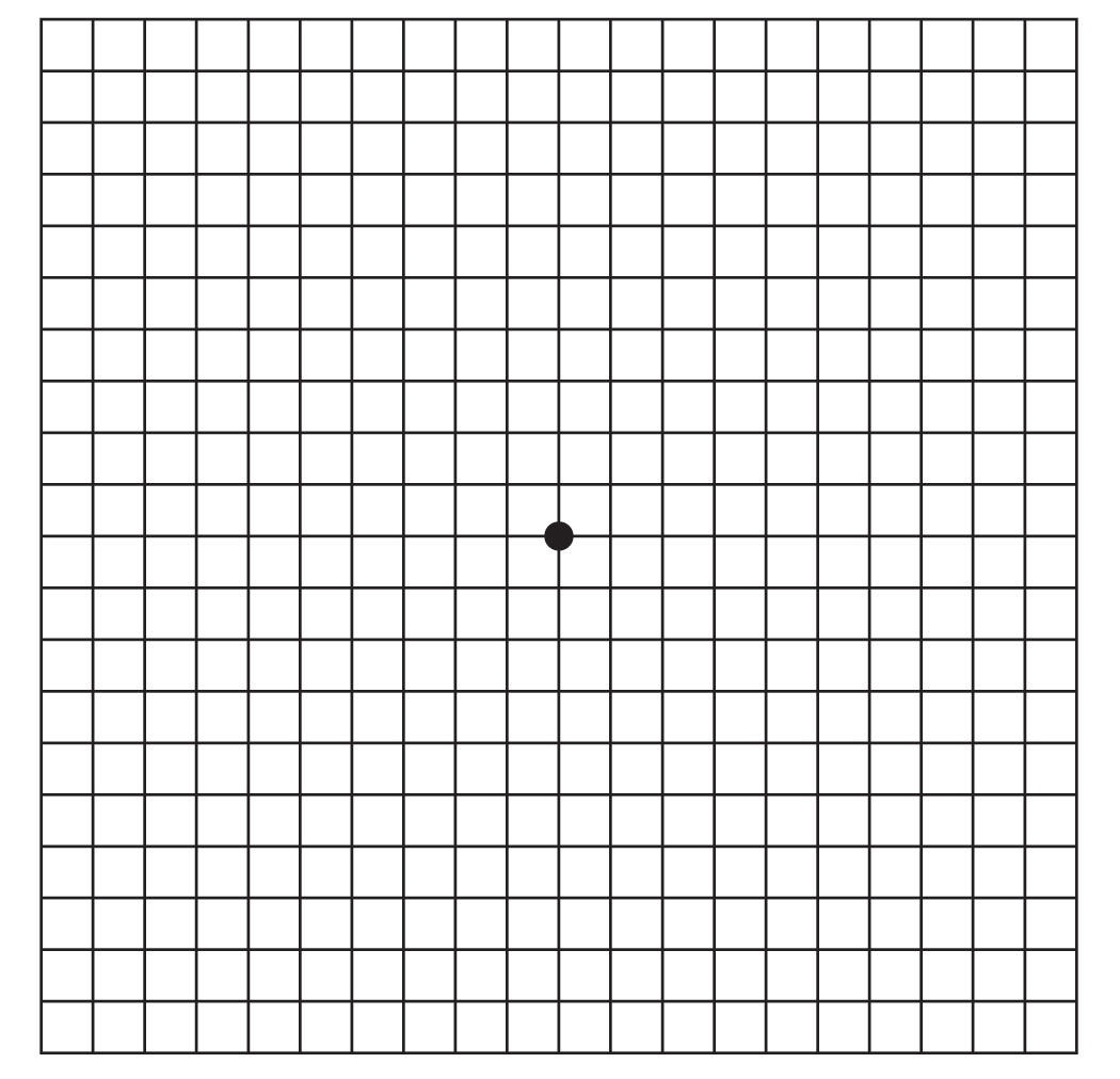 graphic about Printable Amsler Grid identified as Amsler Grid: Try For Macular Degeneration Or Other Eyesight